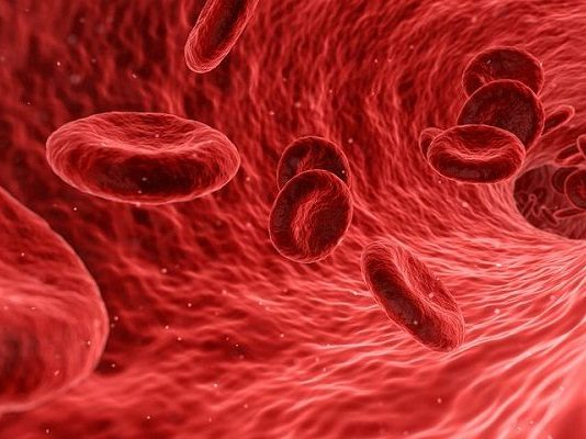 Sikila (SICKLE CELL DISEASE)